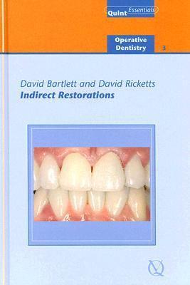 Indirect Restorations - David Bartlett; David Ricketts