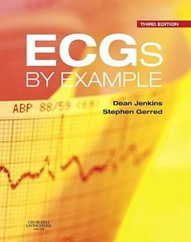 Spiral-bound Ecgs by Example Book