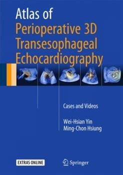 Hardcover Atlas of Perioperative 3D Transesophageal Echocardiography: Cases and Videos Book