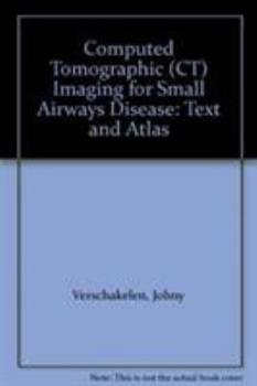 Paperback Computed Tomographic (CT) Imaging for Small Airways Disease : Text and Atlas Book