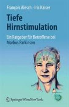 Paperback Tiefe Hirnstimulation: Ein Ratgeber F?r Betroffene Bei Morbus Parkinson [German] Book