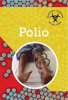 Polio - Book  of the Deadliest Diseases of All Time