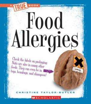 Library Binding Food Allergies (True Books) Book