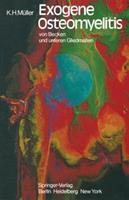 Exogene Osteomyelitis Von Becken Und Unteren Gliedmassen: Besonderheiten Pathogenese Klinik Therapie Ergebnisse 3642678416 Book Cover