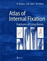 Atlas of Internal Fixation: Fractures of Long Bones; Classification, Statistical Analysis, Technique, Radiology 3540656219 Book Cover